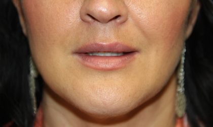 Lip Enhancement Before & After Patient #3790