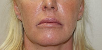 Lip Enhancement Before & After Patient #3793