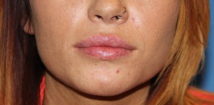 Lip Enhancement Before & After Patient #3796
