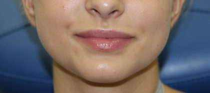 Lip Enhancement Before & After Patient #3799