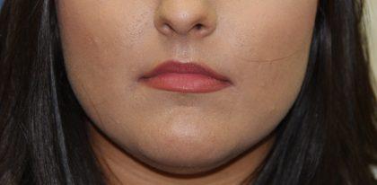 Lip Enhancement Before & After Patient #3802