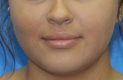 Lip Enhancement Before & After Patient #3805
