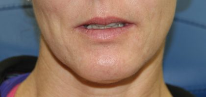 Lip Enhancement Before & After Patient #3808