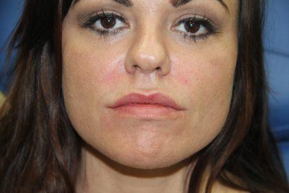 Lip Enhancement Before & After Patient #3811