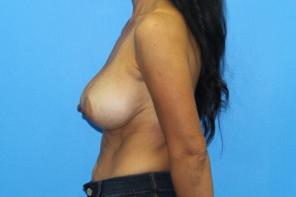 Breast Augmentation with Lift Before & After Patient #2975