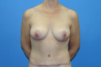 Breast Augmentation with Lift Before & After Patient #3055