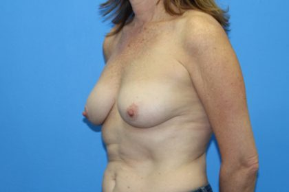 Breast Augmentation with Lift Before & After Patient #2966