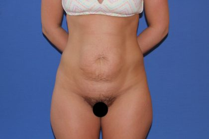 Tummy Tuck Before & After Patient #3303