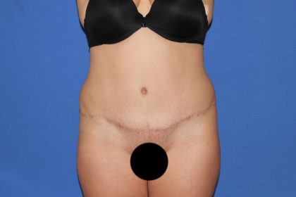 Tummy Tuck Before & After Patient #3331