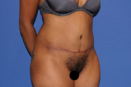 Tummy Tuck Before & After Patient #3287