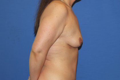 Breast Lift Before & After Patient #3448