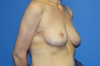 Breast Lift Before & After Patient #3479
