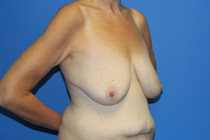Breast Lift Before & After Patient #3459
