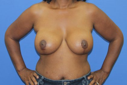 Breast Augmentation with Lift Before & After Patient #2777