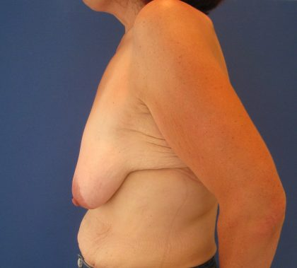 Breast Lift Before & After Patient #3415