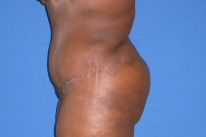 Tummy Tuck Before & After Patient #3387