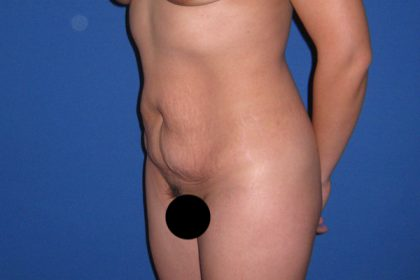 Tummy Tuck Before & After Patient #3366