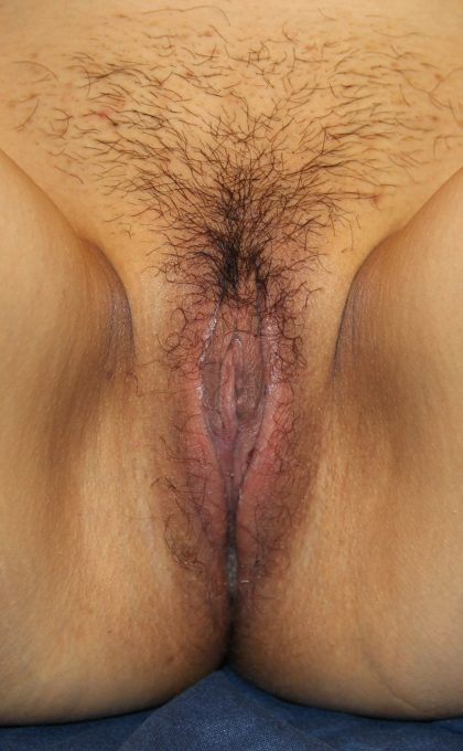 Labiaplasty Before & After Patient #3682