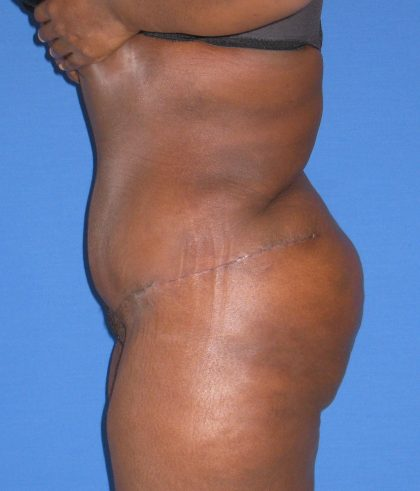 Liposuction Before & After Patient #3697