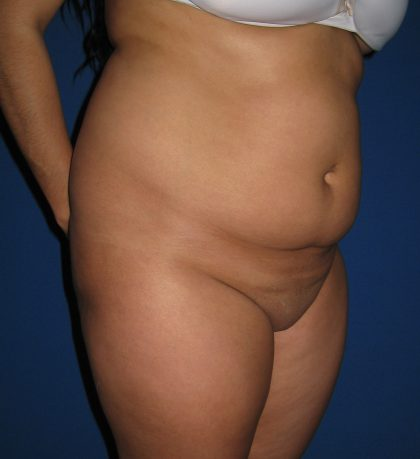 Liposuction Before & After Patient #3702