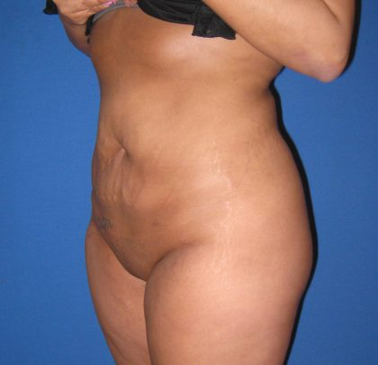 Liposuction Before & After Patient #3711
