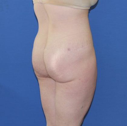 Lower Body Lift Before & After Patient #3724