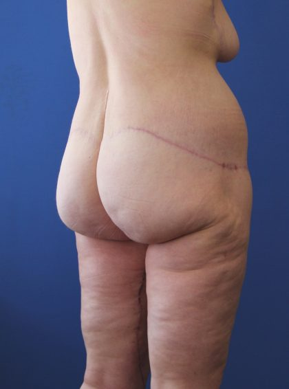 Lower Body Lift Before & After Patient #3735