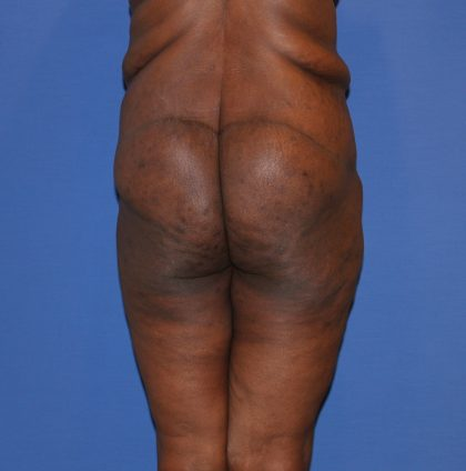 Lower Body Lift Before & After Patient #3746