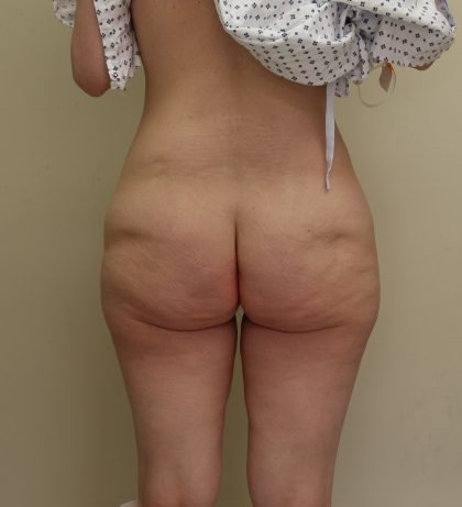 Lower Body Lift Before & After Patient #3768