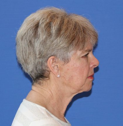 Facelift Before & After Patient #2858