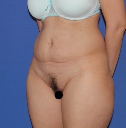 Tummy Tuck Before & After Patient #3185