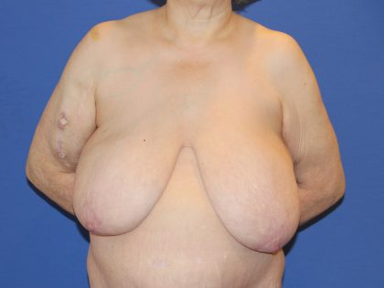 Breast Reduction Before & After Patient #2809