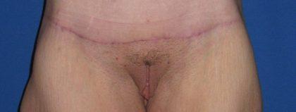 Mons Rejuvenation Before & After Patient #3574