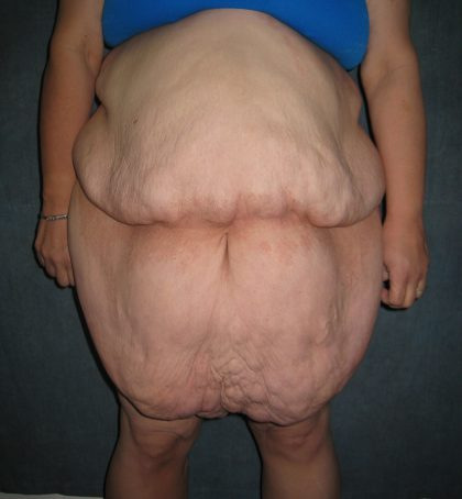 Panniculectomy Before & After Patient #3587
