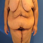 Panniculectomy Before & After Patient #3592