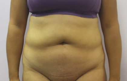 Liposuction Before & After Patient #3648