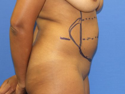 Liposuction Before & After Patient #3655