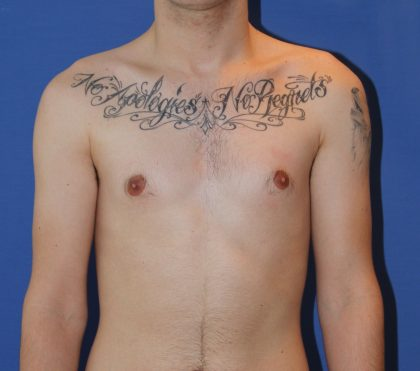 Liposuction Before & After Patient #3671