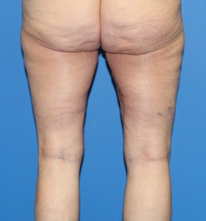 Thigh Lift Before & After Patient #3597