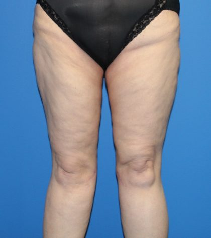 Thigh Lift Before & After Patient #3635