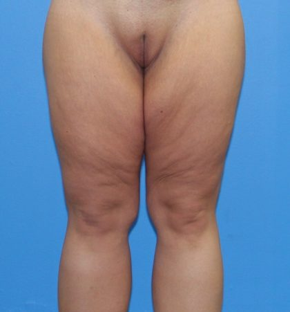 Thigh Lift Before & After Patient #3602