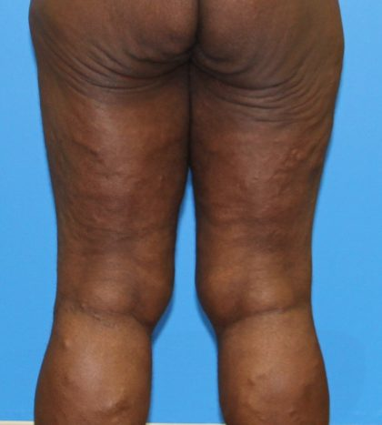 Thigh Lift Before & After Patient #3608