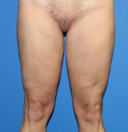 Thigh Lift Before & After Patient #3613