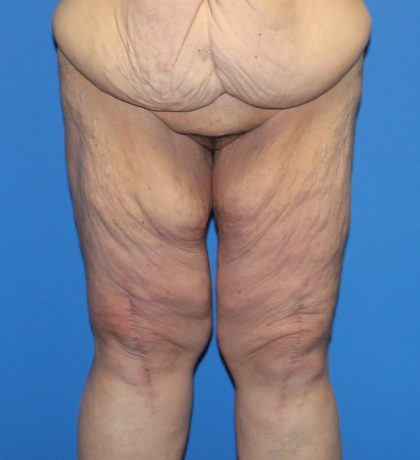 Thigh Lift Before & After Patient #3618