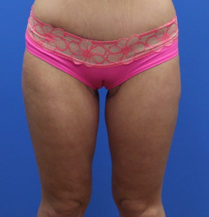 Thigh Lift Before & After Patient #3623