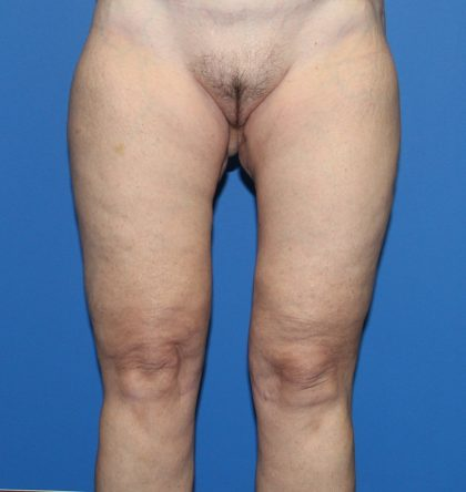Thigh Lift Before & After Patient #3626