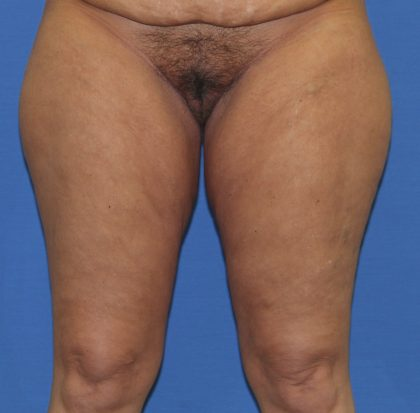 Thigh Lift Before & After Patient #3632