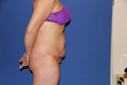 Tummy Tuck Before & After Patient #3222