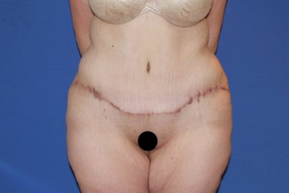 Tummy Tuck Before & After Patient #3246