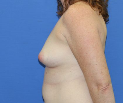 Breast Augmentation Before & After Patient #2707